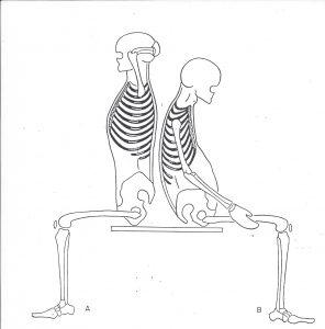 skeletal posture illustration of poor vs good sitting